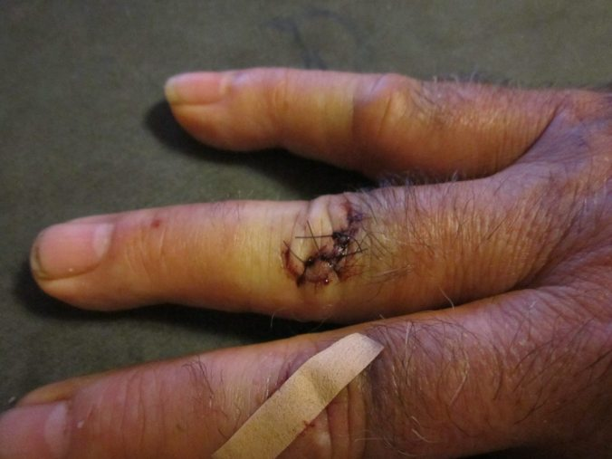 This is the damage that can be caused by an adjustable wrench and a hard head.